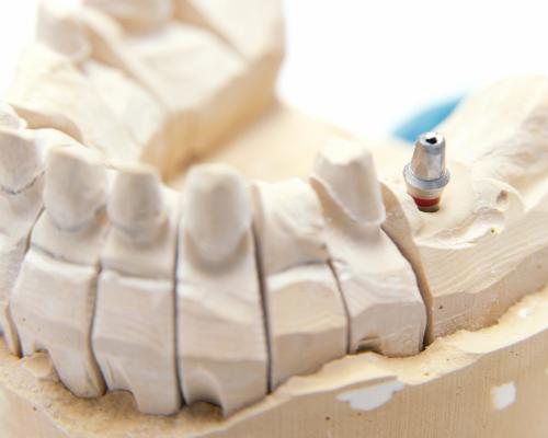 Tooth model showing dental implant