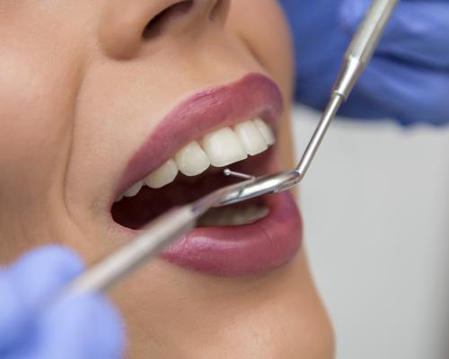 Dental scaling